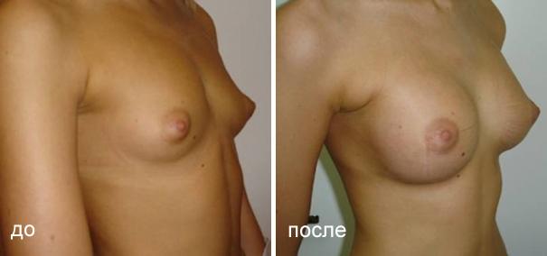 Операция на груди магнитогорск