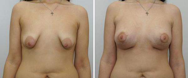 Есть ли код для увеличения груди в симсе 3