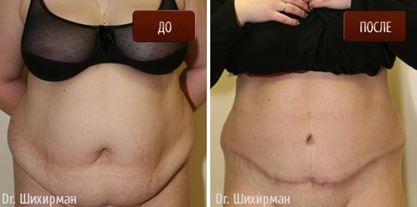 Форум маммопластика фото до и после